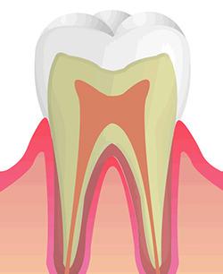C0 初期虫歯