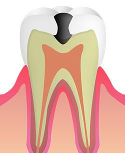 C2 痛みが伴い、虫歯が進行している状態