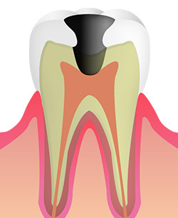 C3 歯髄まで虫歯が達している状態